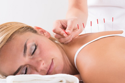 Acupuncture at Stanmore Chiropractic